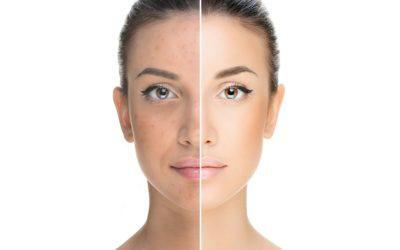 Connaissez-vous le soin Skin Eclipse ?